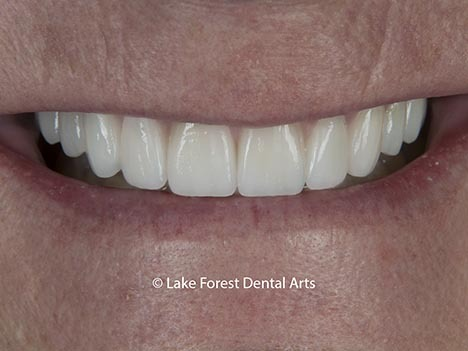 Prosthodontic restoration of smile
