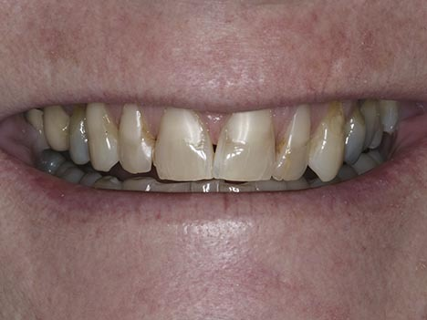Uneven smile, ugly porclein crowns, black lines