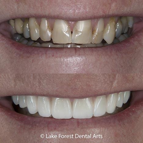 Veneer teeth before and after