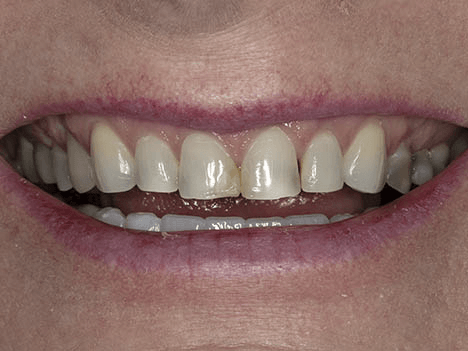 Are veneers better than crowns - before image