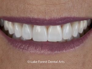 Are veneers worth it?