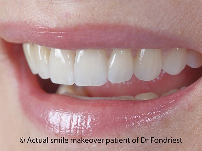 Veneers are worth the cost