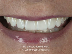 No-preparation veneers