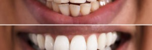 smiling woman showing off before an after teeth whitening
