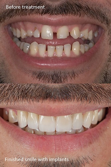 Prosthodontics for a better smile makeover