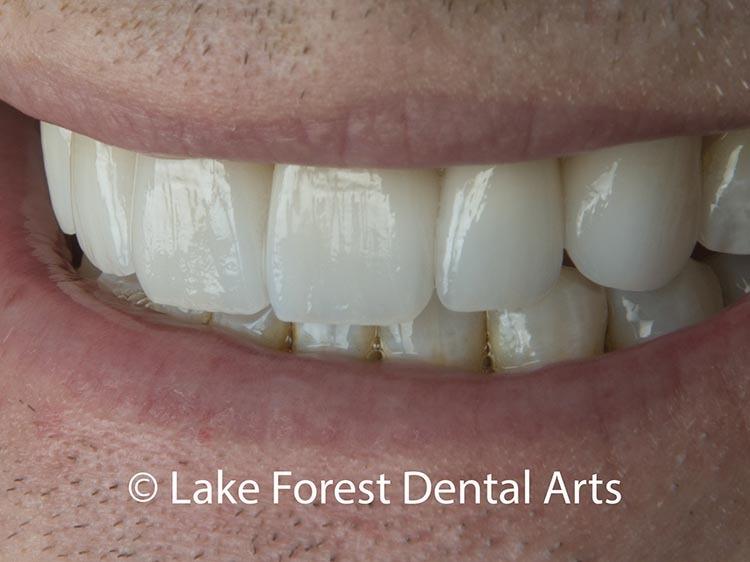 Seamless Dental Restoration