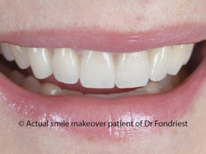 Makeover done with veneers