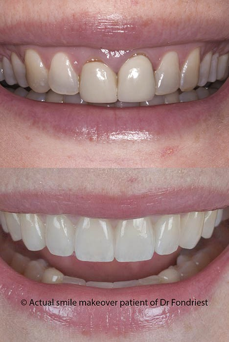 teeth makeover before and after pictures
