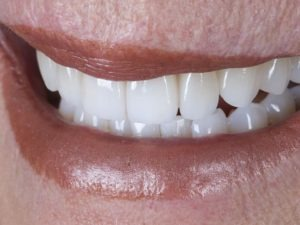 enhancing your smile