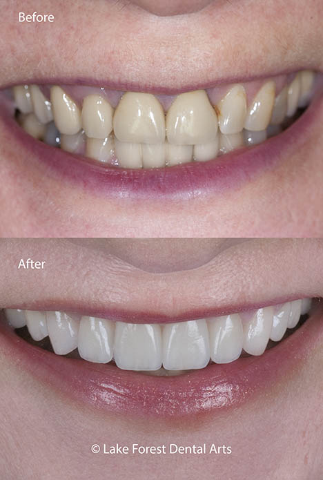 Front Tooth Crowns | How to make them disappear