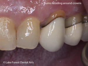 Gum receding around crown