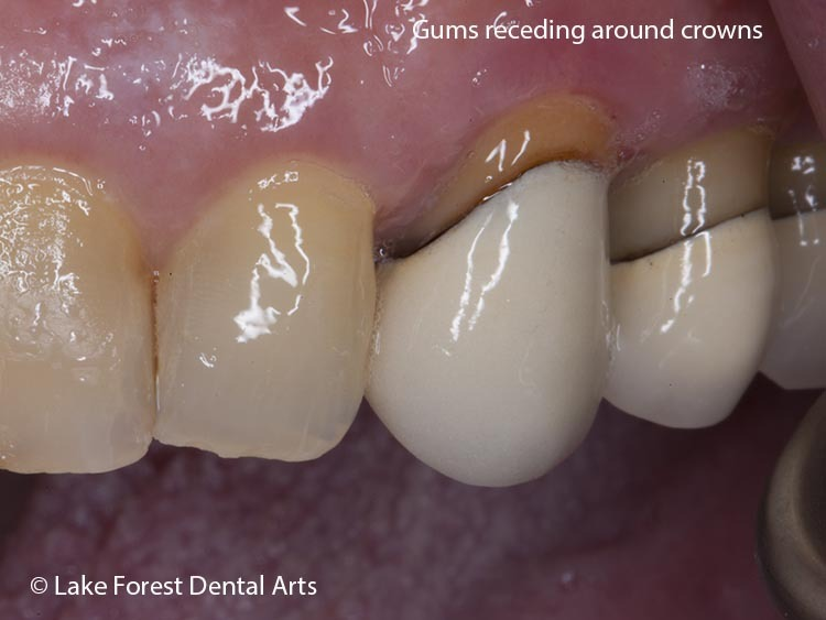crowns with black lines