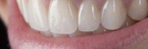 porcelain tooth bridge