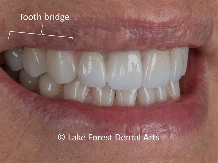 Posterior tooth bridge