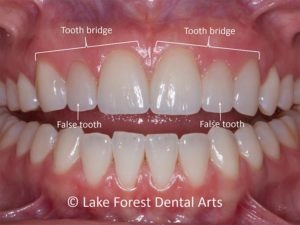 cleaning dental bridges