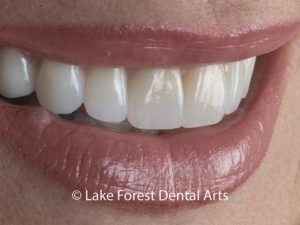 porcelain veneers after treatment