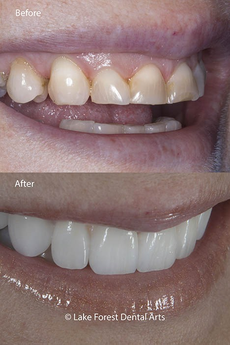 Worn teeth before and after