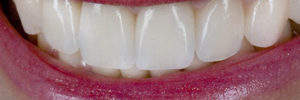 best crowns for teeth
