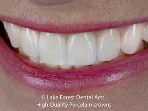 best crowns for teeth