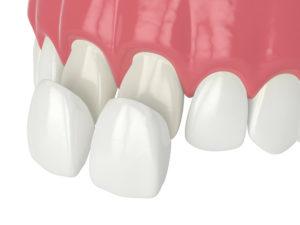 how veneers are placed over teeth