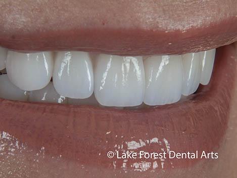 prosthodontic makeover
