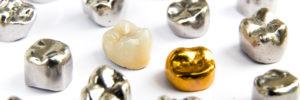 metals in dentistry