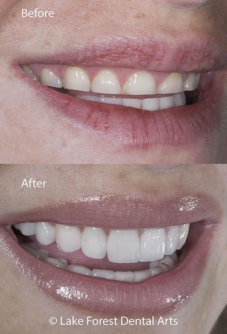 short teeth fixed before and after
