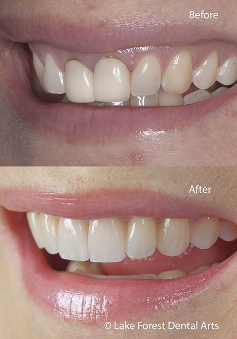 smile correction with veneers