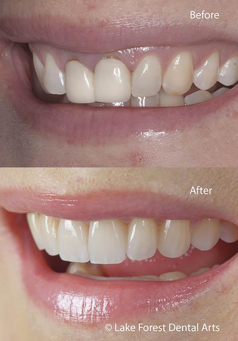smile correction with veneers